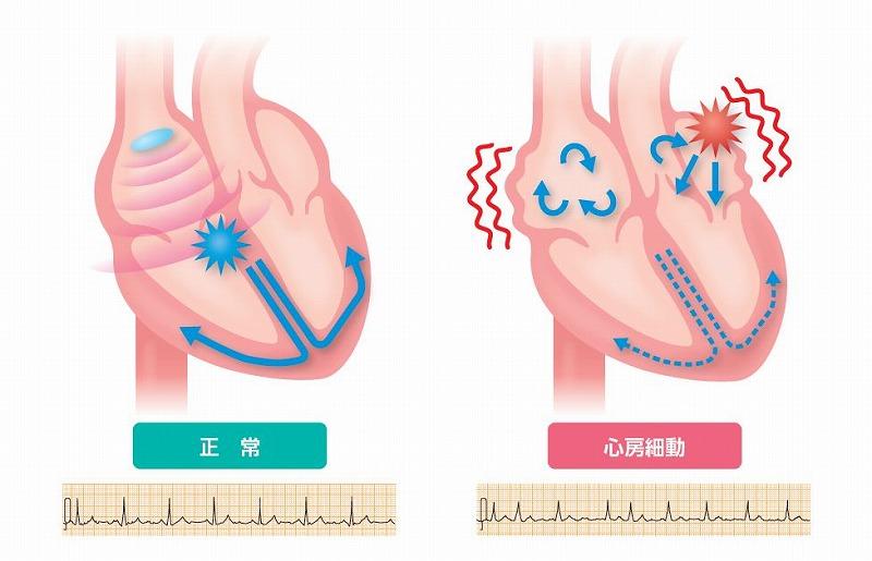 心房 細 動 再発 心房細動 - 基礎知識(症状・原因・治療など)